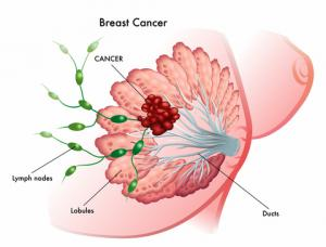 Breast cancer breaking news